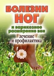 Дарья Нестерова - Болезни ног и варикозное расширение вен. Лечение и профилактика
