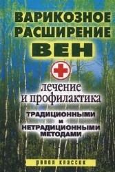 Варикозное расширение вен. Лечение и профилактика традиционными и нетрадиционными методами